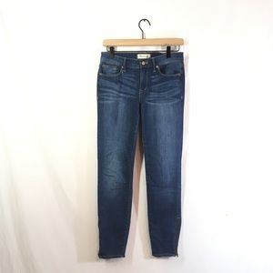 Madewell Skinny Zip Ankle Jeans
